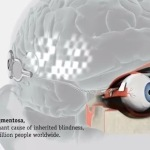 Scientists Surgically Implant a Working Bionic Eye